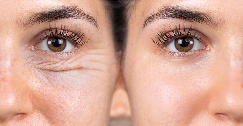 What's the big deal with Retinoids?
